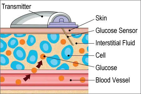 Image showing how typical CGM readers estimate your glucose from interstitial fluids (IF). Glucose travels from the blood vessels to the IF which is read by your CGM.